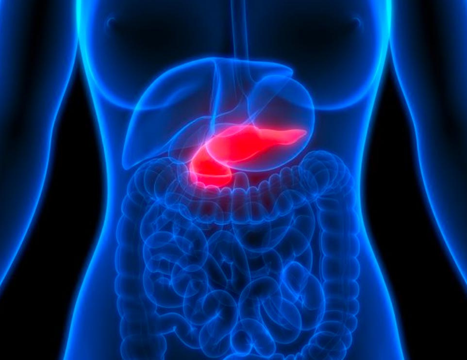 Pancretic Cancer Screenings at MyClinic Group
