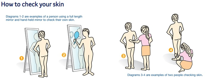 How to check your skin