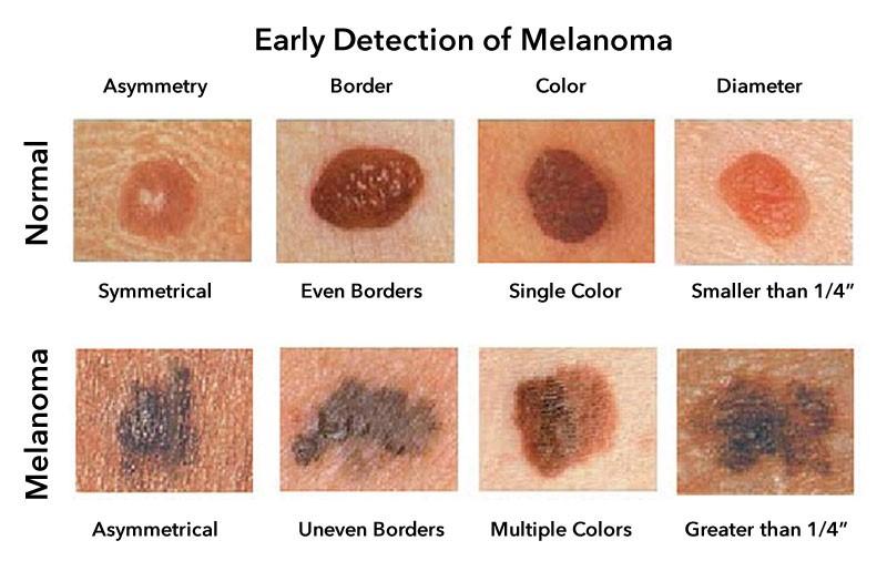 Early detection of Melanoma